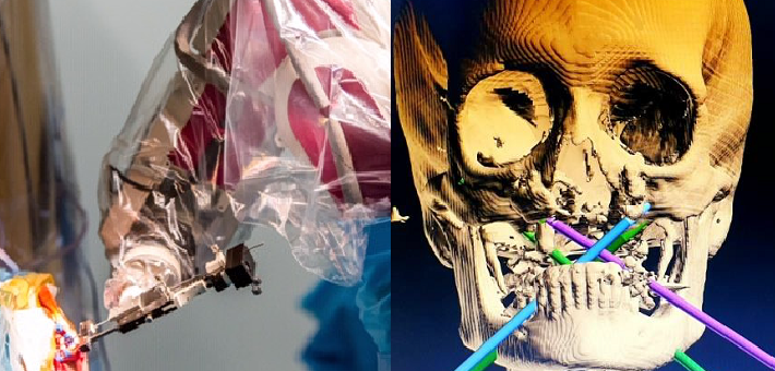 Première pose mondiale d'implants zygomatiques assistée par robot